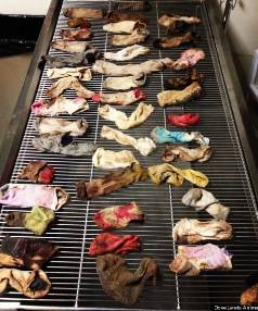 DIRTY LAUNDRY: The 43.5 socks that were surgically removed from a Great Dane.