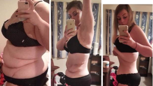 Christchurch woman's battle with excess skin after weight ...