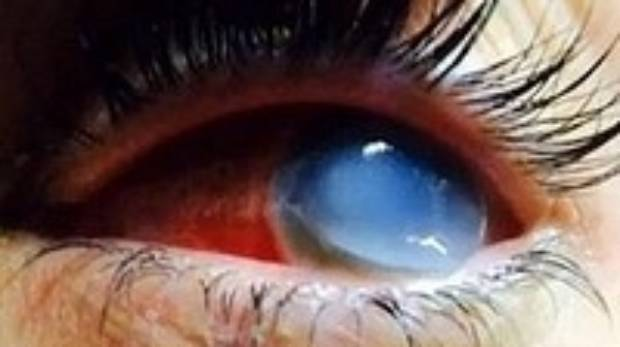 Brittany Williams' eye was ravaged by a rare flesh-eating infection that enters the body through an open wound or cut and spreads quickly.