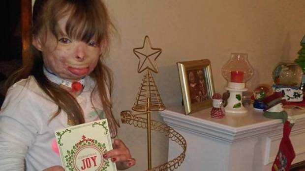 Girl who lost family in fire wants lots of Christmas cards