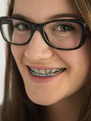 Abbey Meiritz-Reid, 15, says she never used to like smiling because she was embarrassed about her teeth.