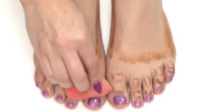 Slimming down your toes is the latest fad in the beauty world.