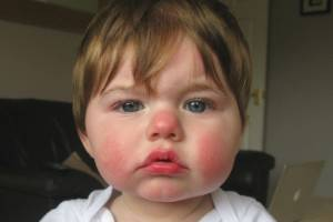 While very common and not too serious in kids, slapped cheek can be serious, and even fatal, if a foetus is infected ...